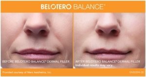 Belotero Before and After 1